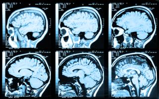 Fisioterapia Neurológica en Sant Andreu